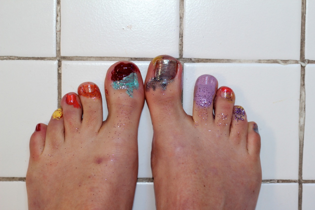 What missing toenail? | My Romance With Running